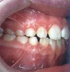 chỉnh răng cắn hở