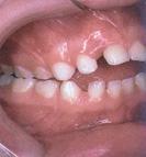 răng cắn hở