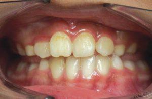 chỉnh răng móm