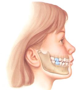 răng mọc lệch vào trong