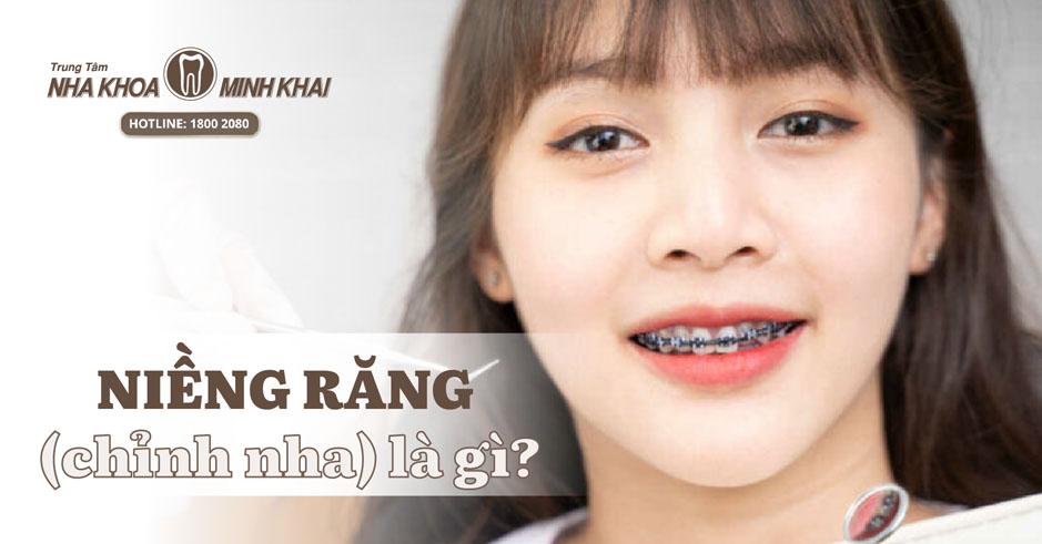 Niềng răng (chỉnh nha) là gì?