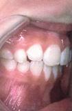 chỉnh răng hô