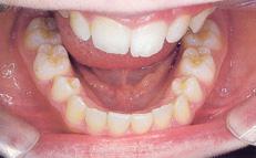 chỉnh răng xoay và chen chúc
