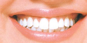 WHITE Smile – 1 Hour Whitening