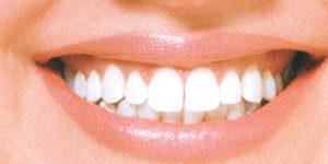 WHITE Smile – 1 Hour Whitening