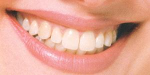 tẩy trắng răng có hiệu quả không?