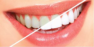 Teeth Whitening- Before – After images