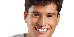 Take-home Whitening with Opalescence