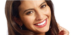Does Teeth Whitening Work?