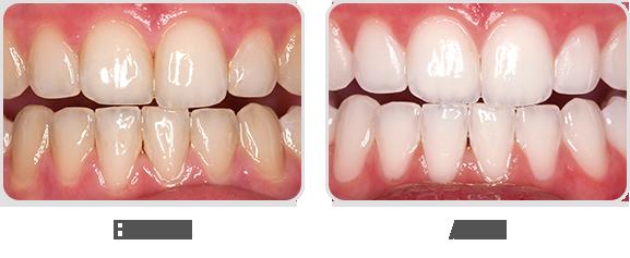 Hình ảnh trước và sau khi tẩy trắng răng với Opalescence Boost