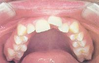 chỉnh răng chen chúc