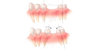 thiếu răng