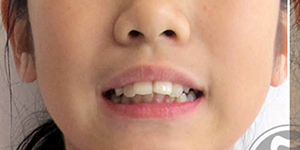 How do i look with braces?