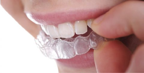 Clear aligner - orthodontic without braces