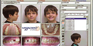 Process of orthodontic treatment