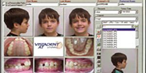 Process of orthodontic treatment