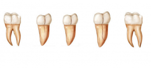 Cracked tooth is a popular cause of toothache