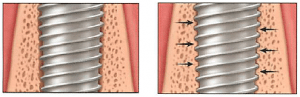Osseointegration - Implant integrates with jawbone