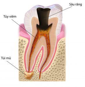 Viêm tủy răng và nguy cơ mất răng - NHA KHOA MINH KHAI