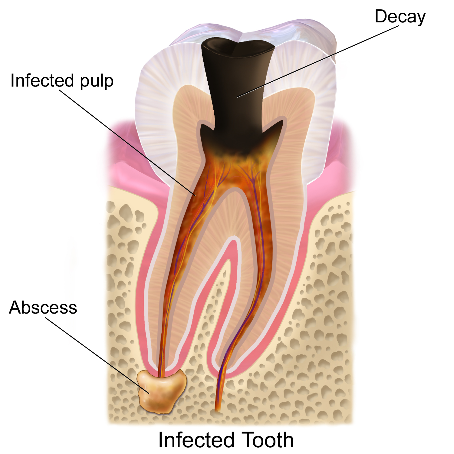 molar tooth decay - 575×609