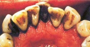 trước khi cạo vôi răng