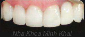 Xem hình ảnh răng veneer điển hình