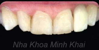 răng đẹp bằng mặt dán veneer