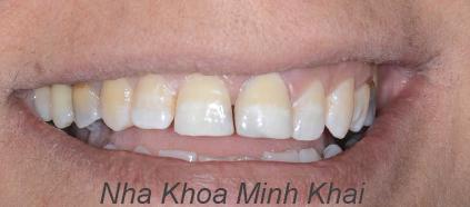 răng đẹp bằng veneer