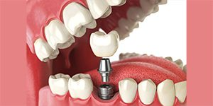 What is dental implantation?