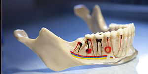 Care after endodontic treatment