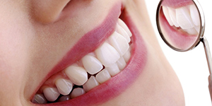 Dental veneers for beautiful smile