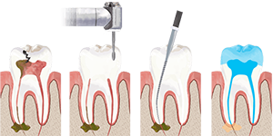 Endodontic treatment at Minh Khai Dental Clinic