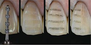 How are dental veneers applied?