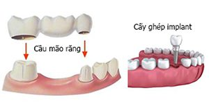 Replacing missing tooth by dental bridge or dental implant?