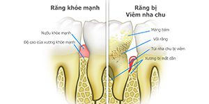 How are periodontal diseases treated?