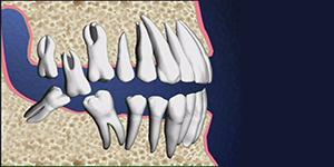 Benefits of Dental implantation