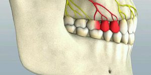 Pulpitis – Risk of tooth loss
