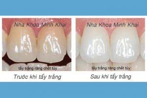 Hình ảnh trước và sau khi tẩy trắng răng bằng ánh sáng xanh với White-Smile